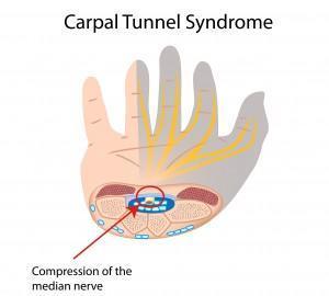 CARPAL-TUNNEL