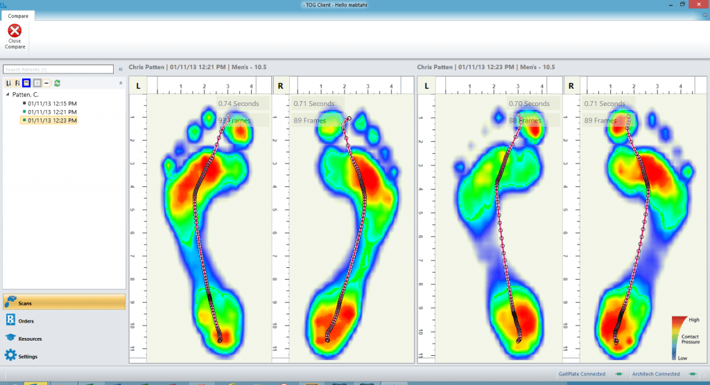 GaitScan-Comparison
